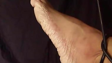 Bianca's feet after 105 hours wet